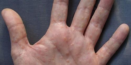 Trattamento di un fungo su mani di unghie
